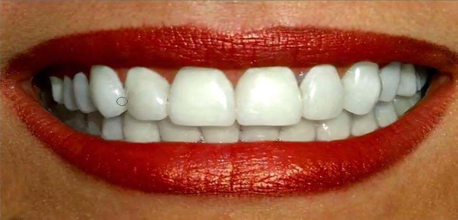 Blanquear dientes resultado